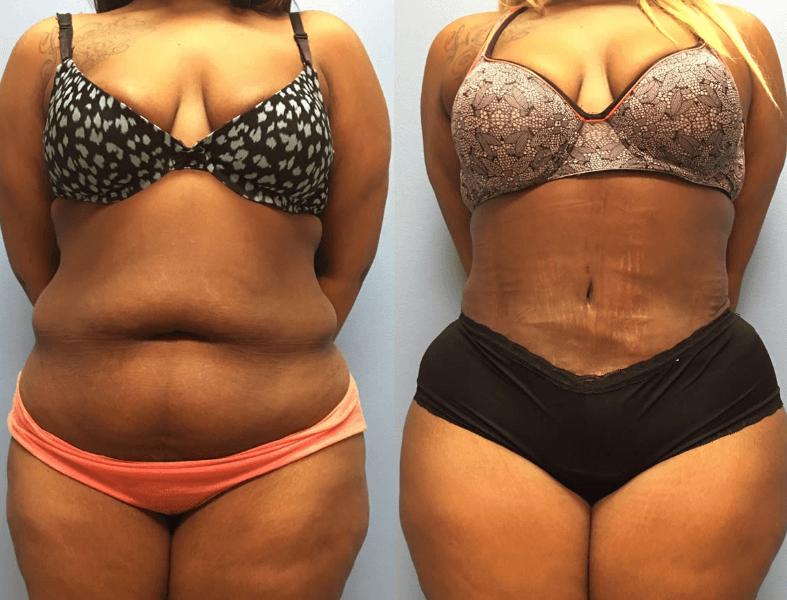Resultado De Lipoasripação Antes E Depois Em Mulher Com Muita Gordura E Estrias No Abdômen