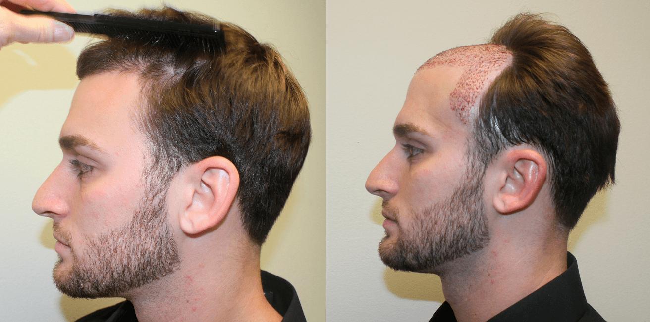 Resultado Impressionante Antes E Depois Do Implante Capilar