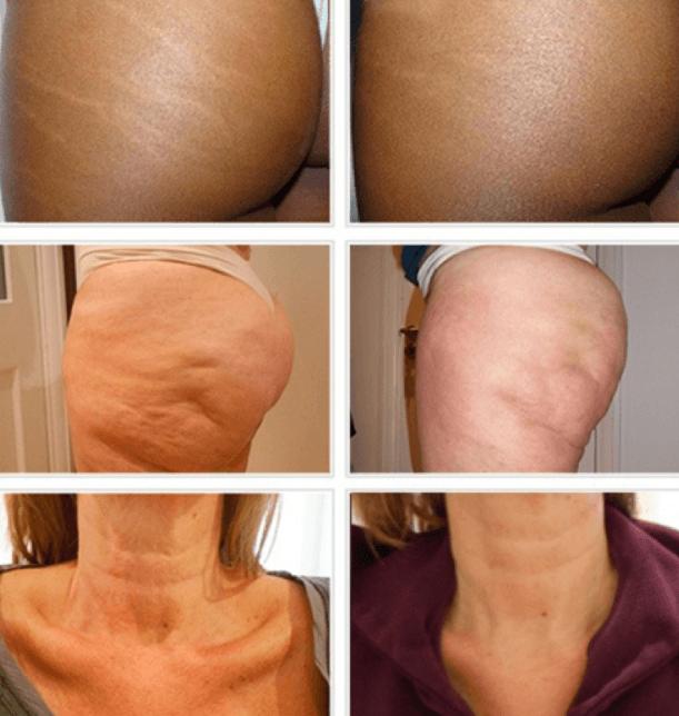 Resultados Da Carboxiterapia Em Estrias, Celulite E Flacidez No Pescoço Antes E Depois