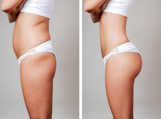 Resultados Da Gluteoplastia Antes E Depois
