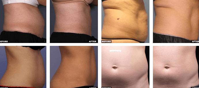 Resultados Do LipoSonix Antes E Depois Do Tratamento