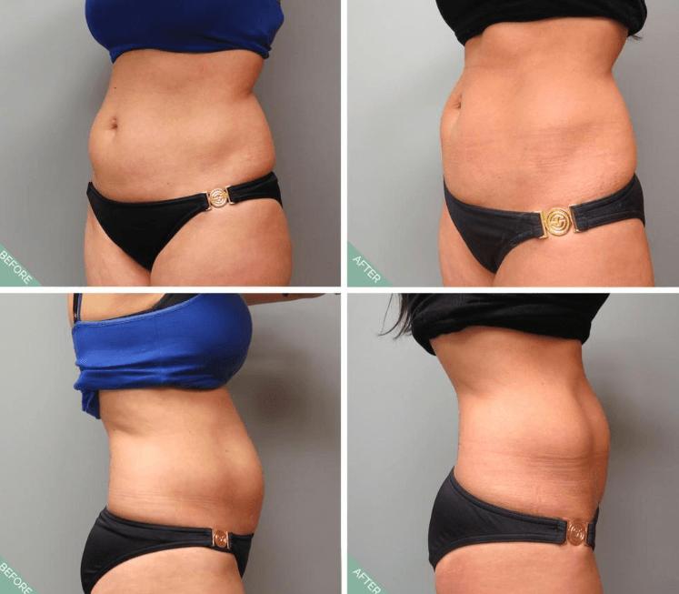 Resultados Do Ultrashape Antes E Depois
