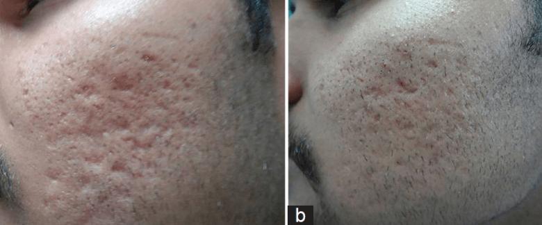 Subcisão Em Cicatrizes De Acne Antes E Depois