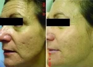 Exemplo antes e apos tratamento para cicatrizes de acne