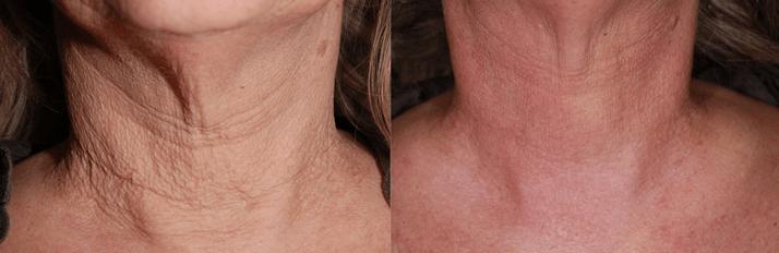 Endymed RF  3 Deep: Conheça os resultados do tratamento