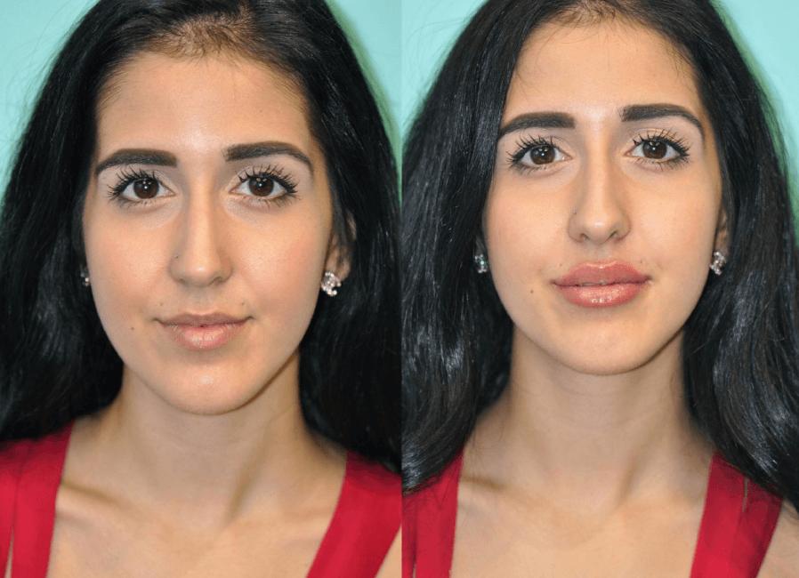Veja Os Resultados Fantástico Da Bioplastia Labial Antes E Depois