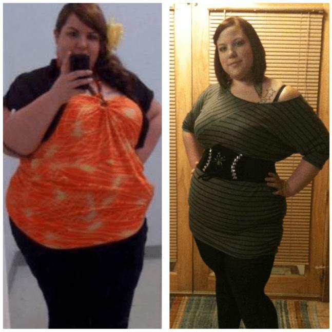 6 Meses Após A Cirurgia Para Perda De Peso