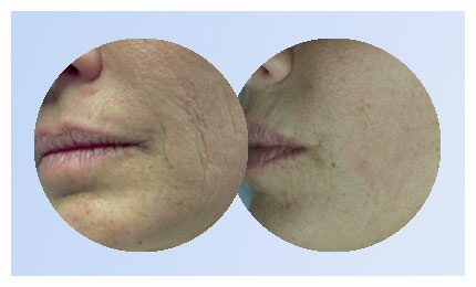 Laser SmartXide: Saiba o Preço do tratamento que elimina rugas, flacidez, cicatrizes e revitaliza a pele