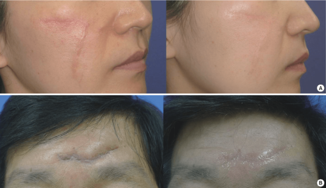 Antes E Depois Do Uso De Folhas De Gel De Silicone Para Cicatrizes