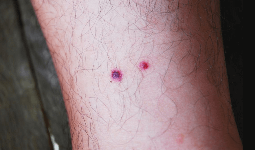 Cicatrizes Hipertróficas Podem Ser Vermelhas E Elevadas