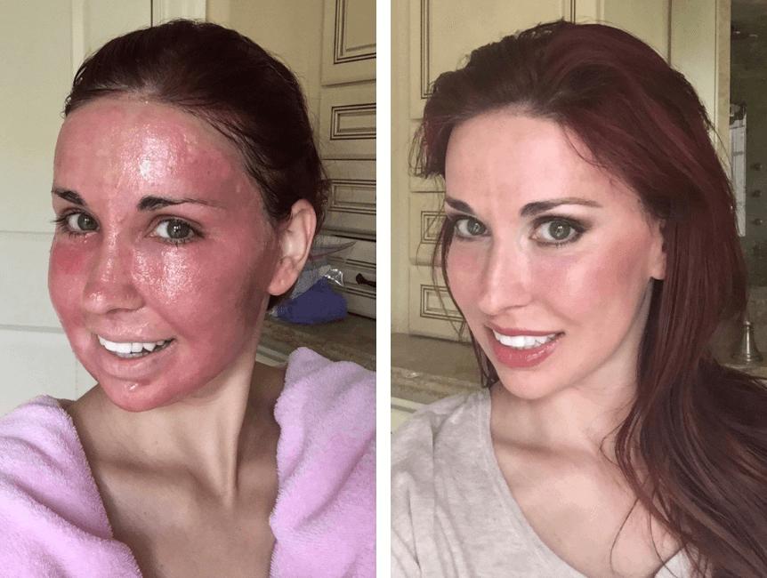 Como Reduzir O Inchaço Facial Após O Laser Co2 Fracionado