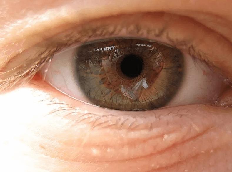 Degeneração Macular Relacionada à Idade