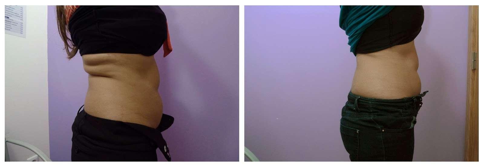 Foto de pressoterapia antes e depois cintura