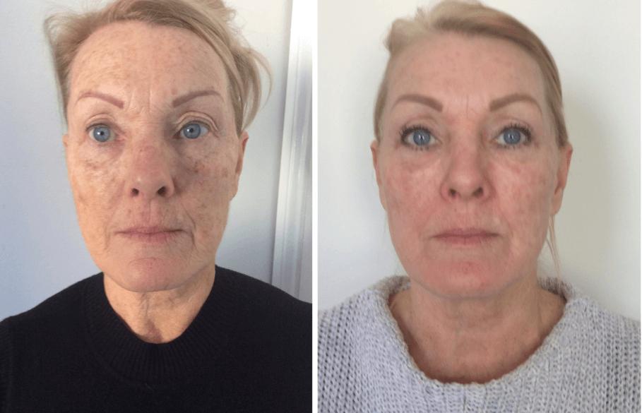 Injeções De Colágeno Para Preenchimento Facial Antes E Depois
