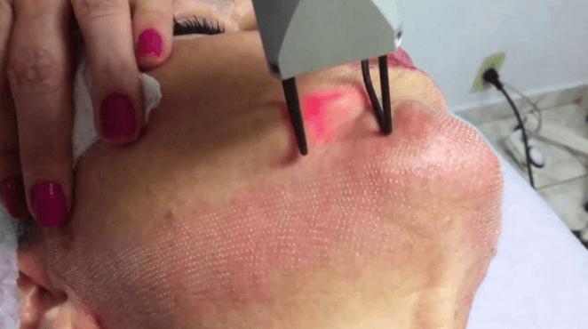 Laser SmartXide Elimina Rugas, Flacidez, Cicatrizes E Vitaliza A Pele