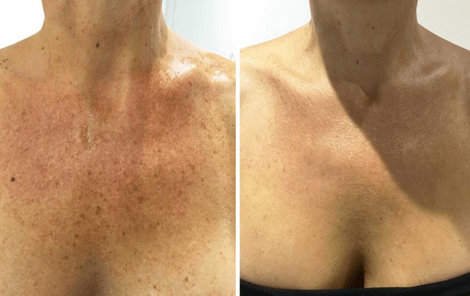 Rejuvenescimento do Decote, Pescoço e Revitalização da Pele