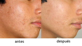 laser co2 antes e depois