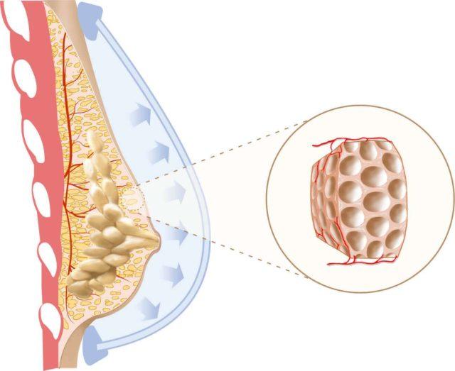 Aumento mamário com gordura: Preço, pós operatório, indicações e dúvidas frequentes