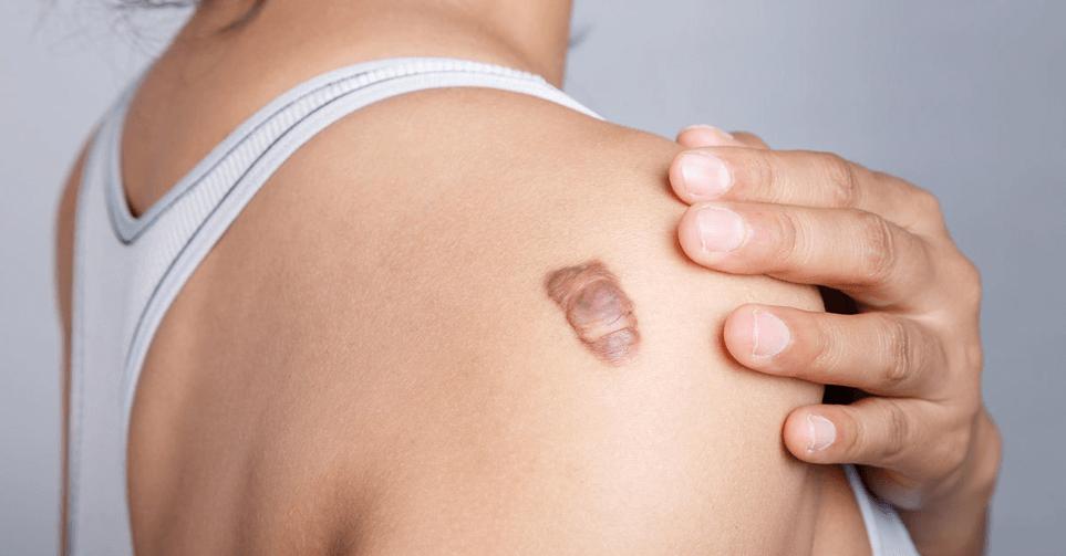Cicatriz Quelóide