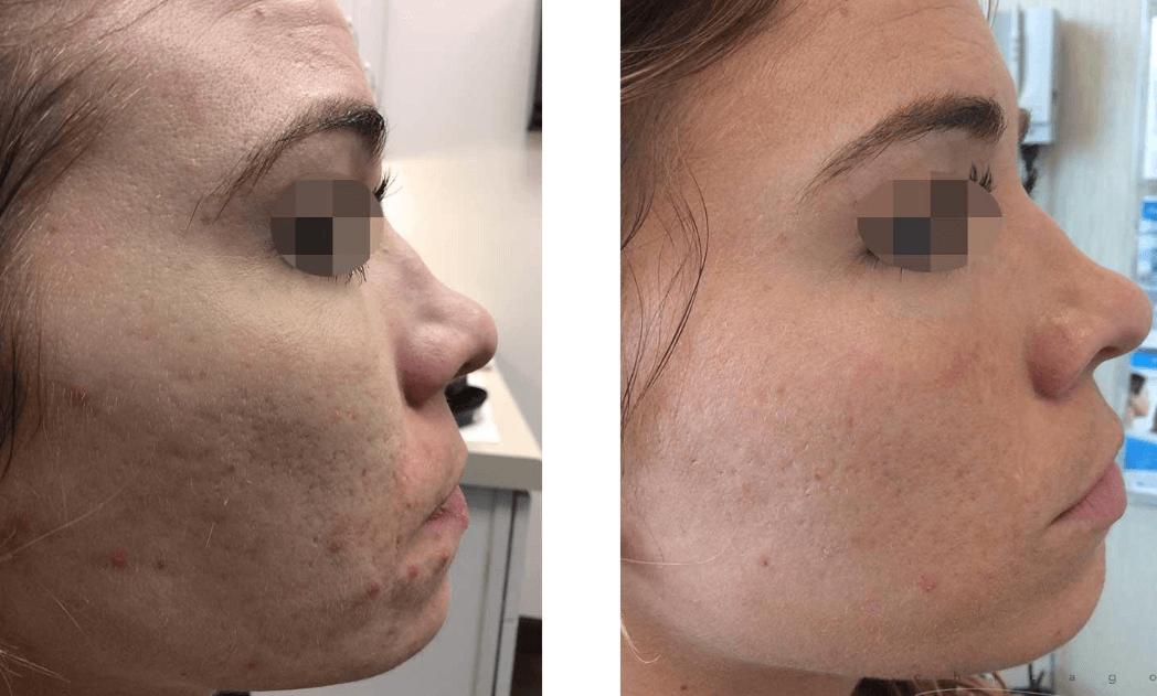 Fotos Do Laser SmartXide Antes E Depois