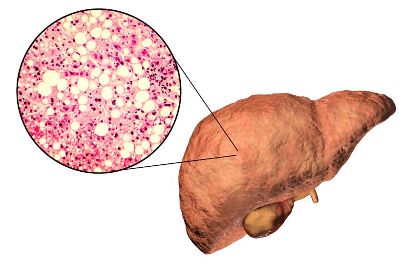 Como Tratar a Gordura no Fígado? Quais as causas e Como identificar?