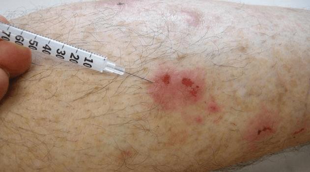 Injeções De Cortisona Ou Esteróides para Tratar Cicatrizes Hipertróficas.