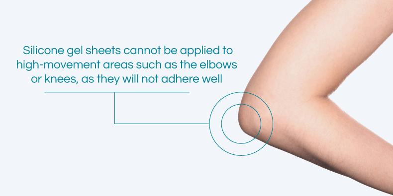 Os Adesivos De Silicone Não Colam Em áreas Móveis Do Corpo, Como Cotovelos Ou Joelhos