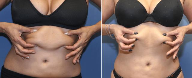 Redução De Gordura Corporal Antes E Depois