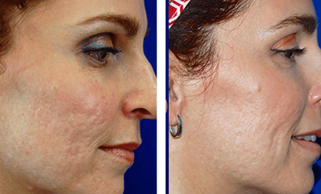 Remoção De Cicatrizes De Acne A Laser Antes E Depois