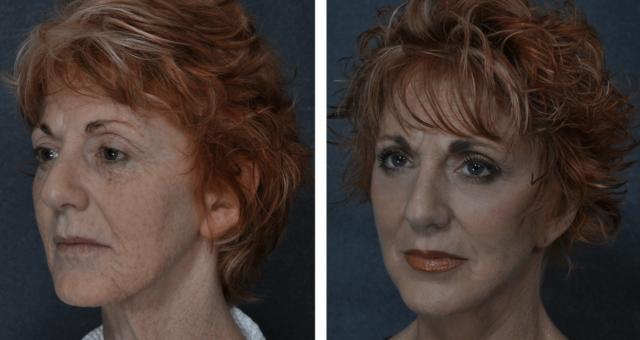Resultados Da Dermoabrasão Antes E Depois