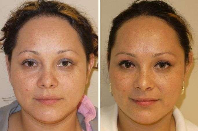Aplicação de botox na testa e na sobrancelha e Área das Rugas para criar uma pele mais lisa