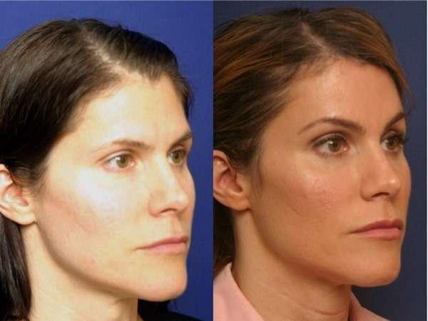 Fotos de mentoplastia de redução antes e depois