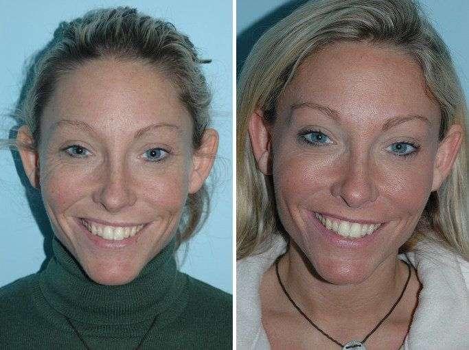 botox antes e depois