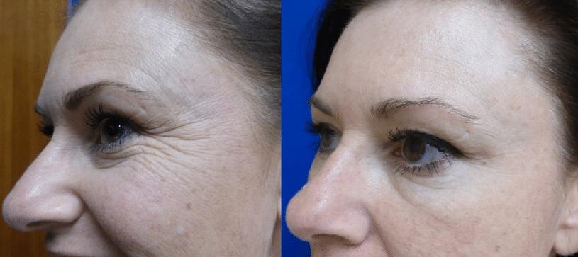 Conheça 8 Indicações, Aplicações e Benefícios do Botox (Toxina Botulínica)