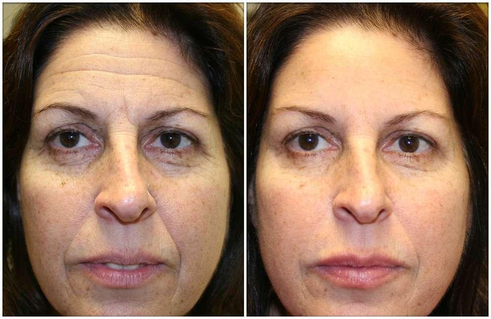 20 Fotos de Rugas Antes e Depois de Vários Tratamentos: Saiba como envelhece o nosso rosto