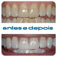 branqueamento-dentario-antes-e-depois