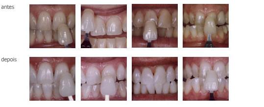 Entenda as vantagens do Branqueamento Dentário BriteSmile