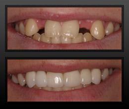 implante antes e depois