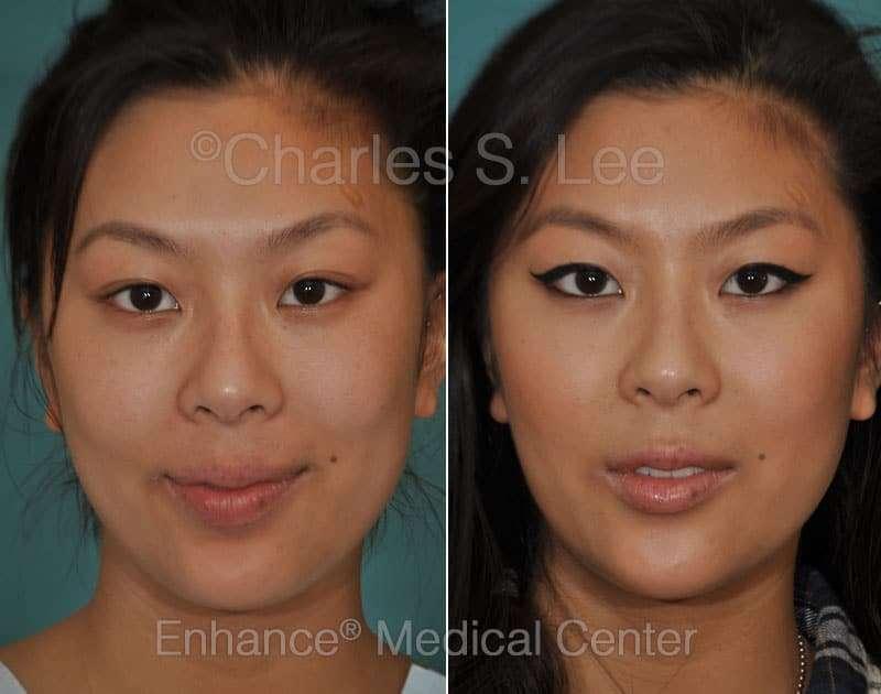 mentoplastia de redução antes e depois