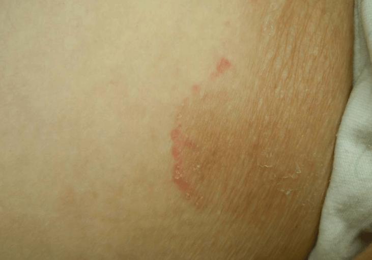 Micose Da Virilha (Tinea Cruris)