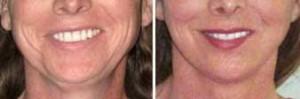 Redução de queixo (mento) e mandíbula - Antes e depois de 11 meses.