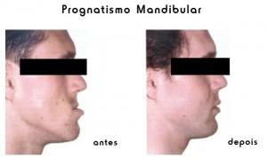 trat_prognatismo