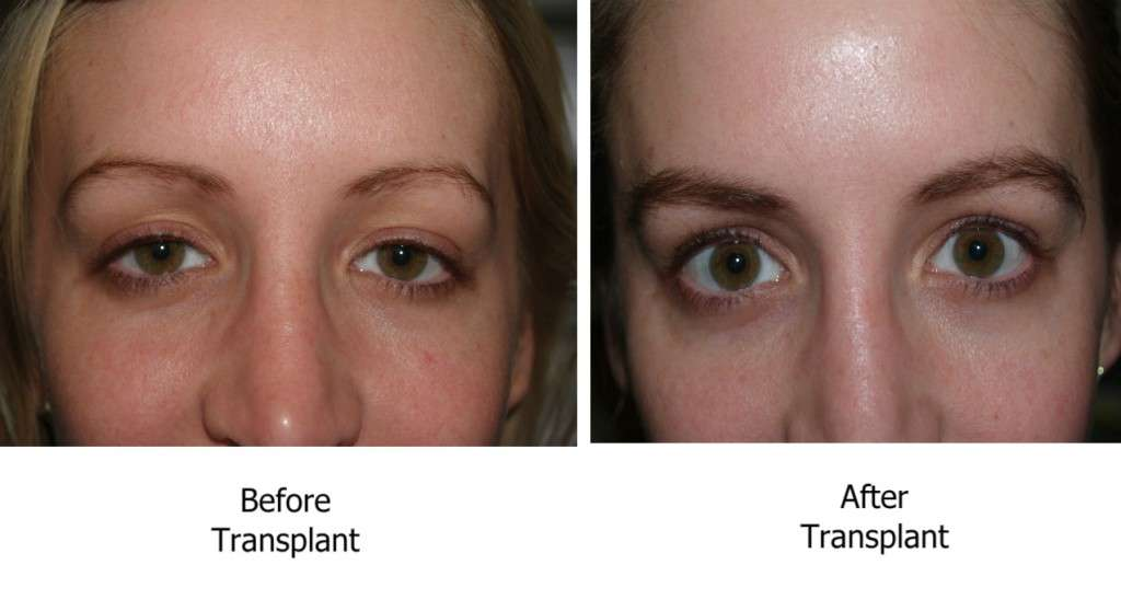 O procedimento de transplante de sobrancelha pode ser feito em pacientes de qualquer idade ou etnia