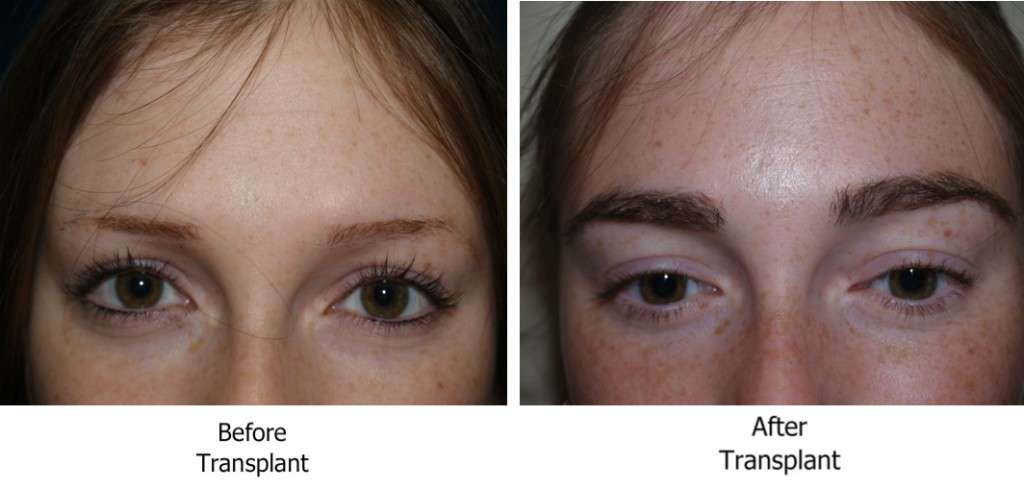 Um dos elementos mais difíceis do processo é o desenho das sobrancelhas. A forma desejada por parte do paciente