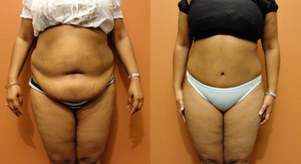 Cirurgia Plástica Abdominal Reaproxima Músculos e Deixa Abdômen Definido