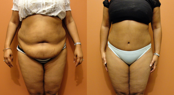 Abdominoplastia, Cirurgia que elimina Flacidez Abdominal