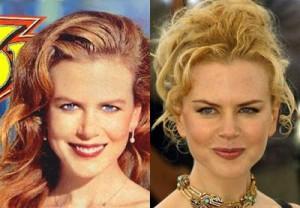 Entre as maravilhas que a Nicole Kidman adora tambem estão as plásticas como: a rinoplastia, frontoplastia, os implantes bochecha o colágeno nos lábios, e o botox.