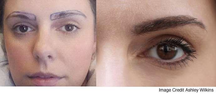 sobrancelha antes e depois