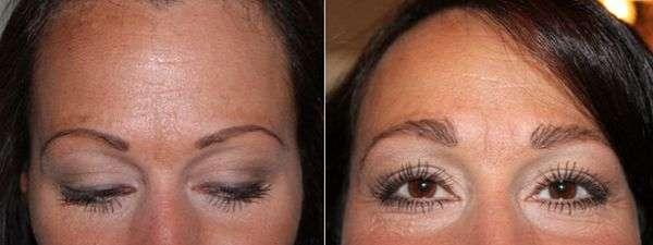 transplante de sobrancelha antes e depois