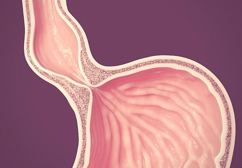 Acalasia: Sintomas, causas e tratamentos